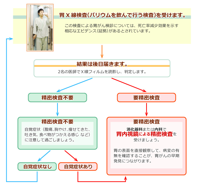 胃がん検診の流れ