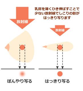 マンモグラフィの撮影の仕方